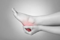 Flat Feet and Plantar Fasciitis